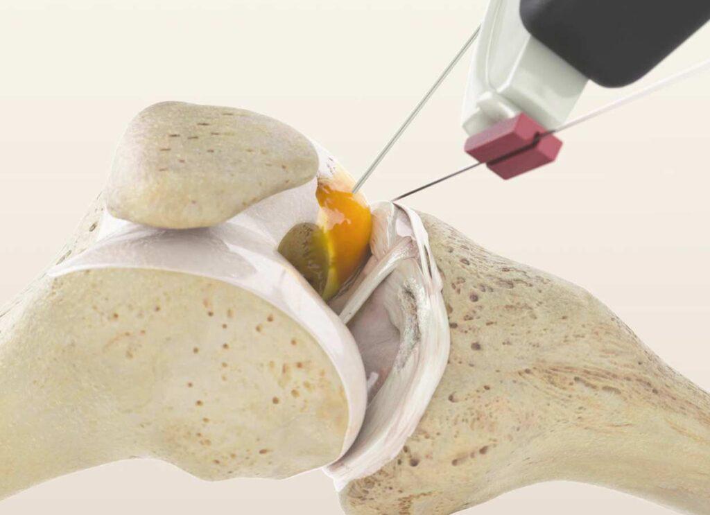 Kniegelenksarthrose-Osteonekrose-Kniearthrose-Meniskusprobleme-Knieverletzung