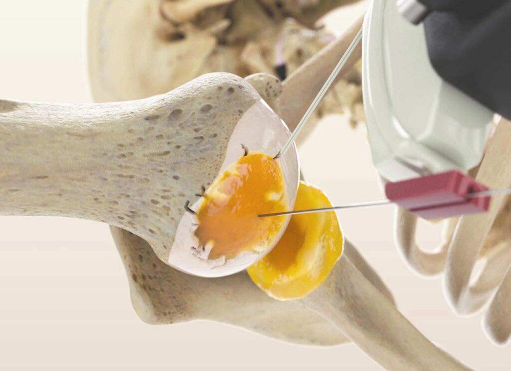 Schulterverletzung-Schulterarthrose-Gelenkluxationen-Schmerzmedizin-Sportmedizin-Gelenkchirurgie